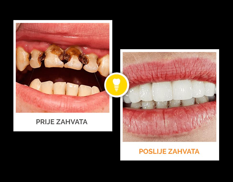 prije i poslije stomatološkog zahvata