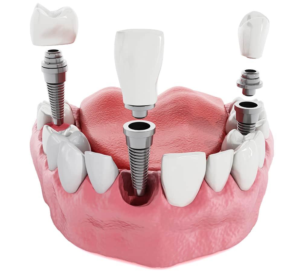 Ugradnja krunica i zubnih implantata