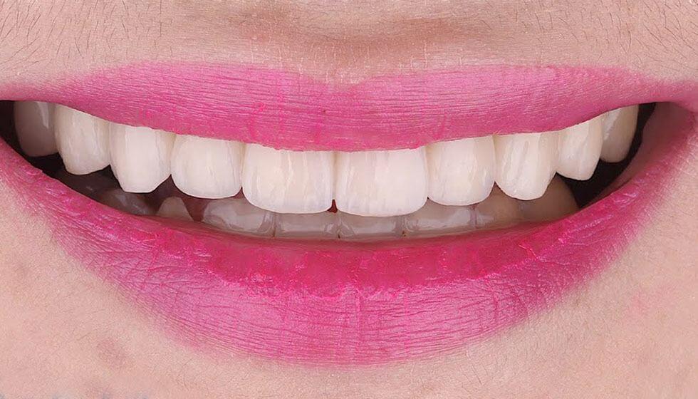 Poslije zahvata kod stomatologa