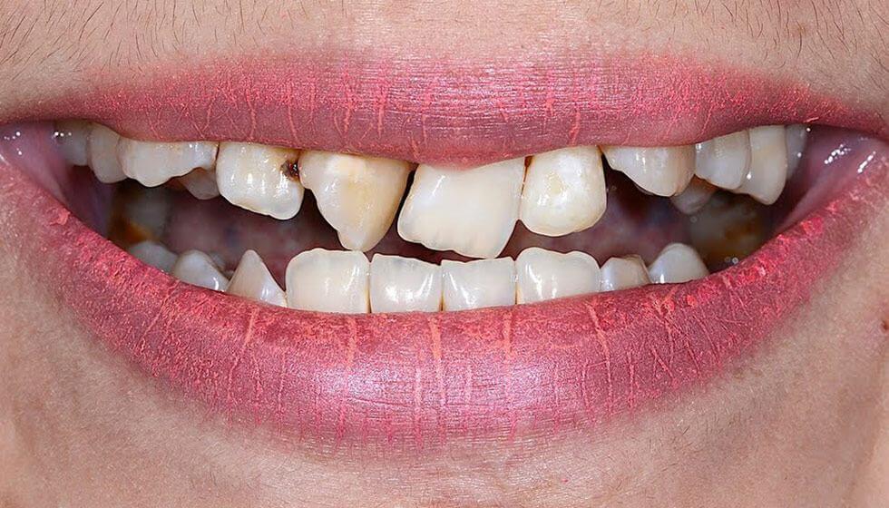 Prije zahvata kod stomatologa