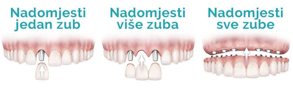zubni implantati i nadomjestak zuba