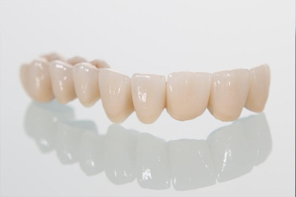Zubni most od cirkon keramike